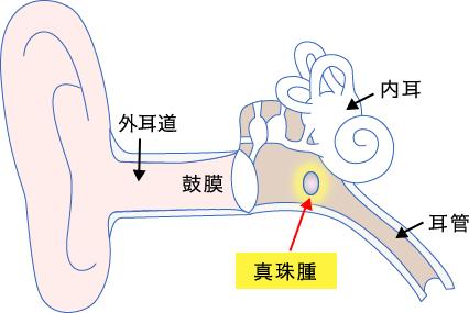 腫 真珠 中耳真珠腫:やさしい耳鼻咽喉科講座:日本耳鼻咽喉科学会広島県地方部会